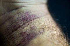Bruise on man arm. Injection bruises. High contrast macro photography. Purple veins on the wrist. Bruise on man arm. Injection bruises. High contrast macro stock photo