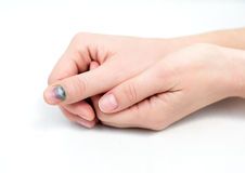 Bruise on nail. Bruise on the woman's finger Royalty Free Stock Photography