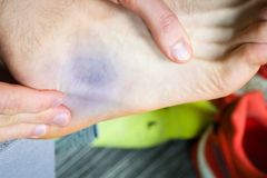 Bruise near ankle. Common runners contusion Royalty Free Stock Photo