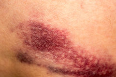 Bruise on Skin Royalty Free Stock Photos