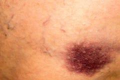 Bruise on Skin Royalty Free Stock Image