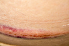 Bruise on Skin Stock Images