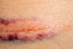 Bruise on Skin Royalty Free Stock Images