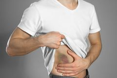 Free Bruise To The Liver. The Pain In His Side. The Man Holds His Side. Close Up Royalty Free Stock Images - 165531829