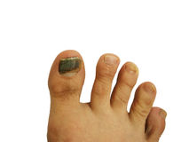 Bruise on toe nail. Toe nails with bruise on white background Royalty Free Stock Photo