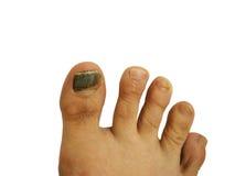 Bruise on toe nail. Toe nails with bruise on white background royalty free stock photo