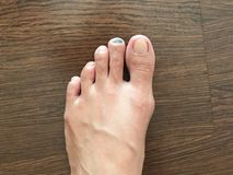 Close-up view of bruise on toenail or injured black toenail on w. Bruise on toenail or injured black toenail on wooden floor, close up view, healthcare and Royalty Free Stock Photos
