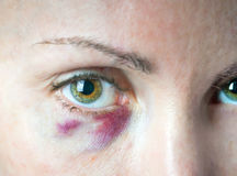 Bruise under an eye. Cosmetology. Royalty Free Stock Images