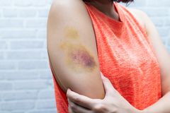 Bruise on woman arm. Injection bruises. Doctor and patient. stock photos