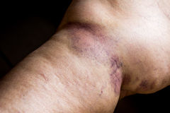 Bruise on wounded old woman leg skin Royalty Free Stock Photo