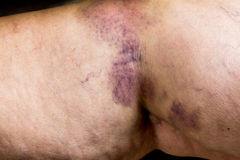 Bruise on wounded old woman leg skin Stock Photo