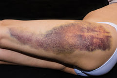 Bruise on wounded woman leg. Closeup on a large bruise on wounded woman leg skin laying on black blanket Royalty Free Stock Photography