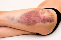 Bruise on wounded woman leg. Closeup on a large bruise on wounded woman leg skin laying on white blanket Royalty Free Stock Images