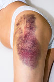 Bruise on wounded woman leg Royalty Free Stock Photo