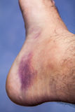 Bruised ankle after tripping over and twisting Stock Photography