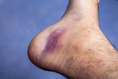 Bruised ankle after tripping over and twisting Stock Photos