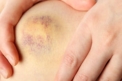 Bruised knee Royalty Free Stock Image