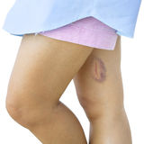 Bruised legs Stock Photo