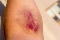Bruised Man's Forearm Stock Photos