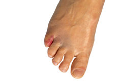 Bruised small toe of a woman. Against white background stock photo