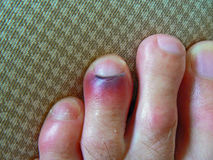 Bruised toe. Black and red bruised toe next to the nail Royalty Free Stock Photography