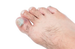 Bruised on toenail Royalty Free Stock Image