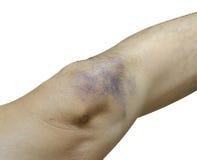 Bruises on leg Royalty Free Stock Images