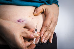 Bruises from self Injecting medical therapy Stock Photo