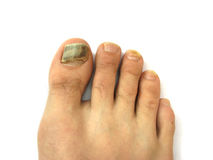 Bruises on toe nails Stock Image