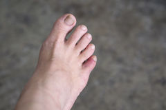 Bruises on woman toe. Close up of pain bruises on woman little toe finger with selective focus Stock Photos