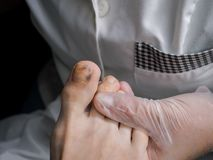 Bruising on the toe of the big toe. Bad leg stock photography