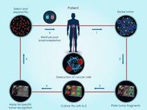 Bruk av TILs för cancerbehandling vektor illustrationer