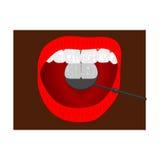 Bruk i behandlingen av spegeln för tand- platta Royaltyfri Fotografi