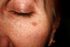 Bruna fläckar under ögat Pigmentering på framsidan Royaltyfri Bild