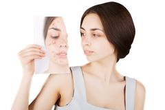 Brunette woman fights with acne on face. Brunette woman fights with acne stock photo