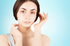Brunette woman with  marks on face on blue. Plastic operation concept - brunette woman with  marks on face Royalty Free Stock Photography