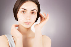 Brunette woman with  marks on face on grey. Plastic operation concept - brunette woman with  marks on face Royalty Free Stock Photos