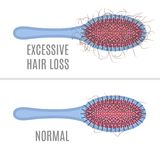 Hair brush- normal versus hair loss. Brush with hair tuft as a sign of alopecia and comb without a clump. Beauty healthcare concept. Vector illustration Royalty Free Stock Photo