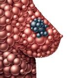 Brust-Tumor stock abbildung