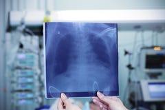 Brustradiographie gegen den Hintergrund einer Krankenstation. Stockfotos