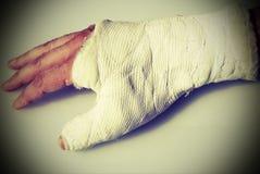 Bruten hand av mannen med den ortopediska gipsförbandet och aet Arkivfoton