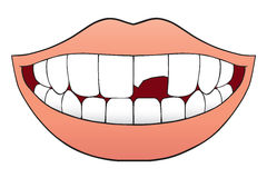 Bruten tand Arkivfoton