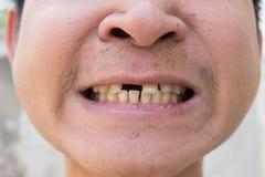 Bruten tand av en man Arkivbild
