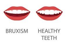 bruxism λείανση των δοντιών συσκευή δοντιών Οδοντική προσοχή πρόβλημα υγείας οδοντιατρικής διανυσματική απεικόνιση