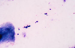 Budding yeast cells with pseudohyphae from sputum gram stain tes Stock Image