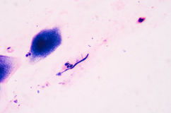 Budding yeast cells with pseudohyphae from sputum gram stain tes Royalty Free Stock Image
