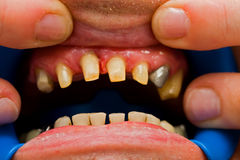 Buffed teeth - prosthetic rehabilitation Stock Image