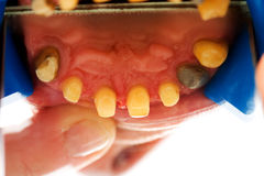 Buffed teeth - prosthetic rehabilitation Royalty Free Stock Images