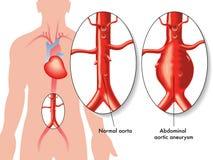 Buik aortaaneurisma stock illustratie