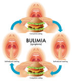 Bulimia. Medical illustration of the symptoms of bulimia Stock Image